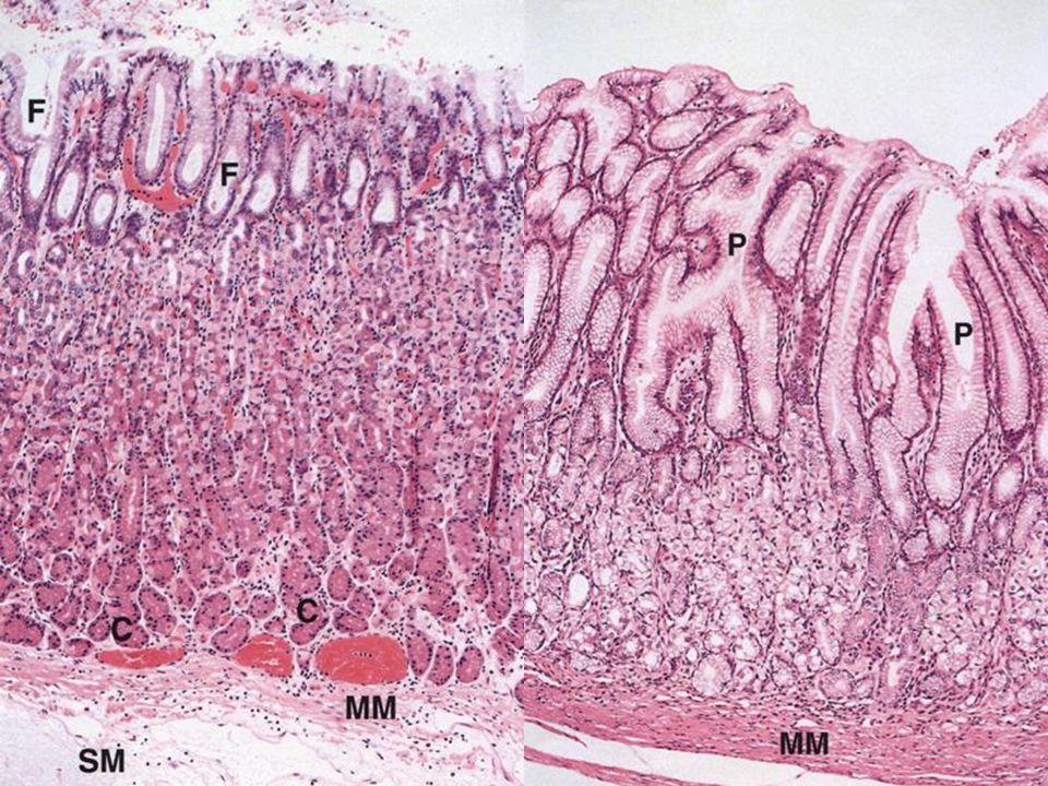 Tunica mucosa of gaster