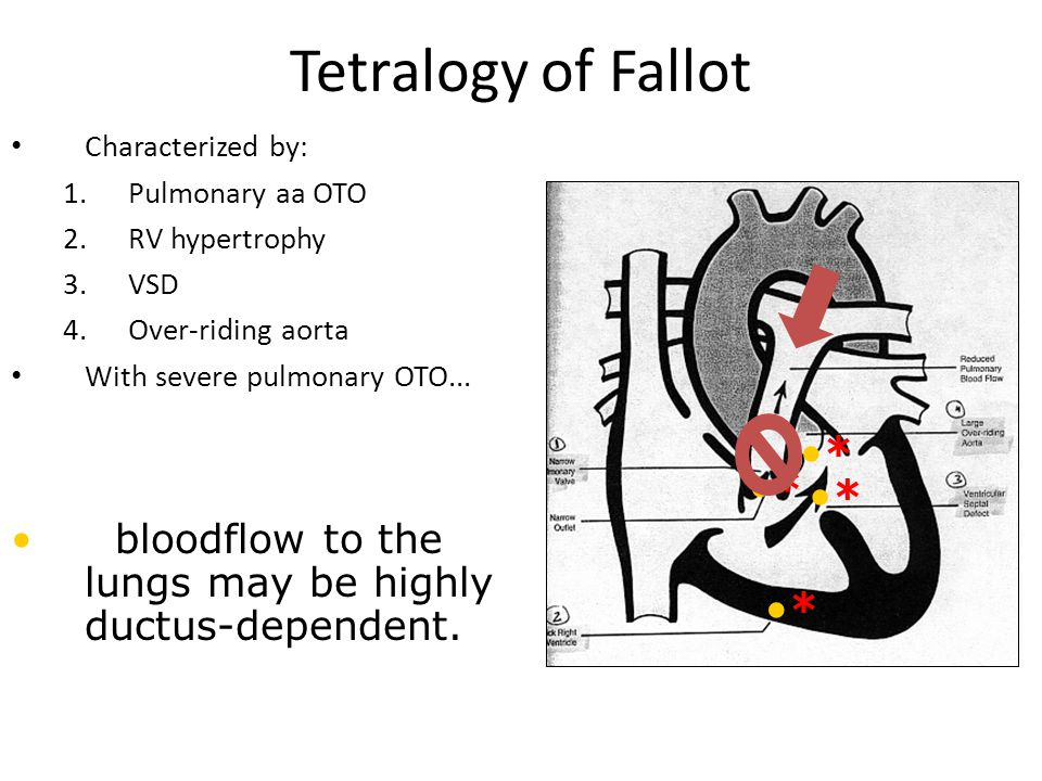 Tetralogy of Fallot * * * *