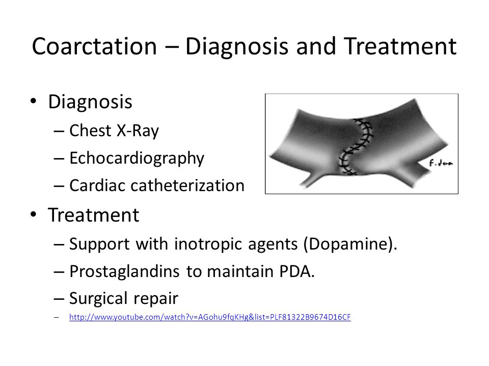 Coarctation – Diagnosis and Treatment