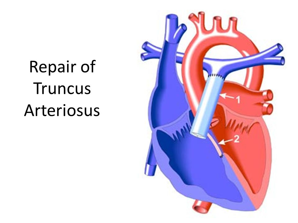 Repair of Truncus Arteriosus