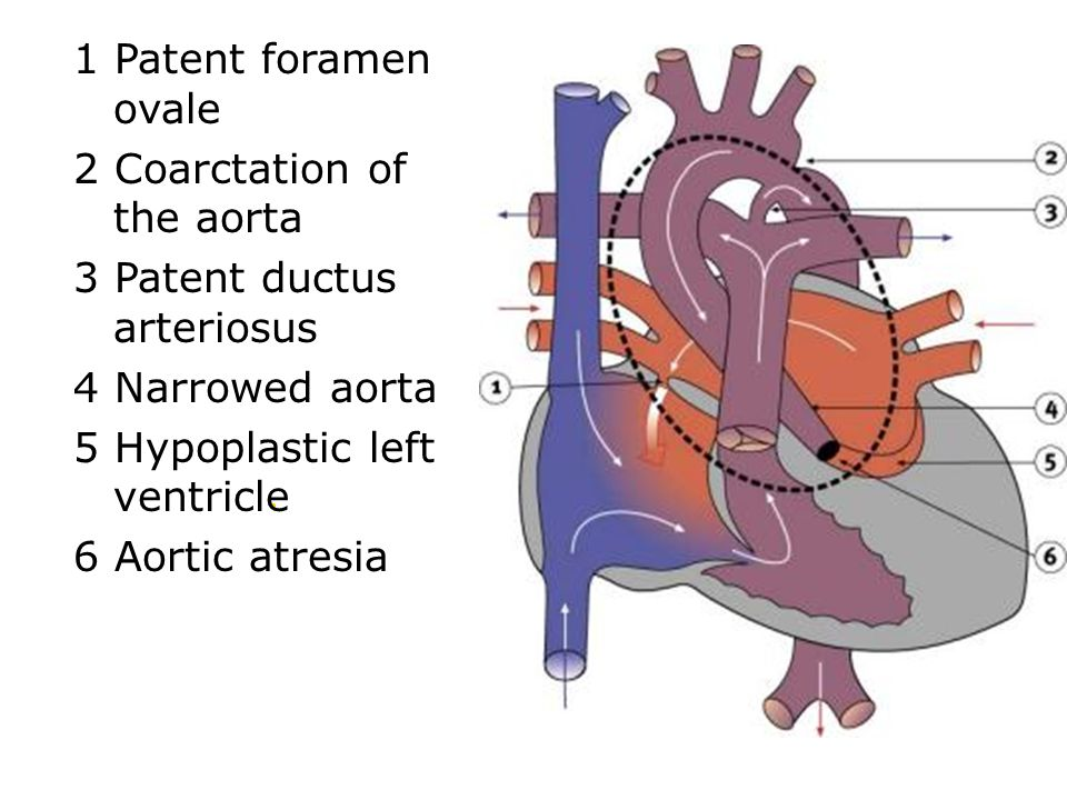2 Coarctation of the aorta 3 Patent ductus arteriosus 4 Narrowed aorta