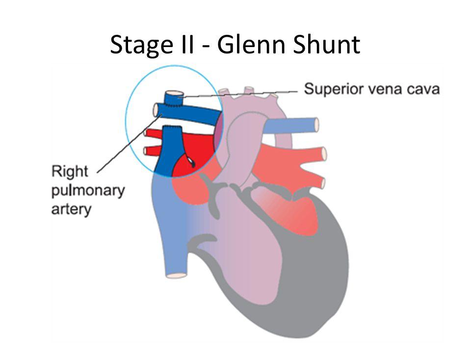 Stage II - Glenn Shunt
