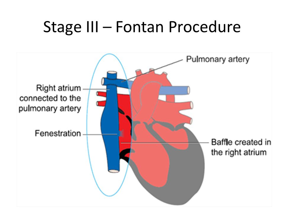Stage III – Fontan Procedure