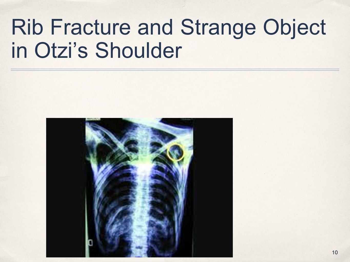 Rib Fracture and Strange Object in Otzi's Shoulder