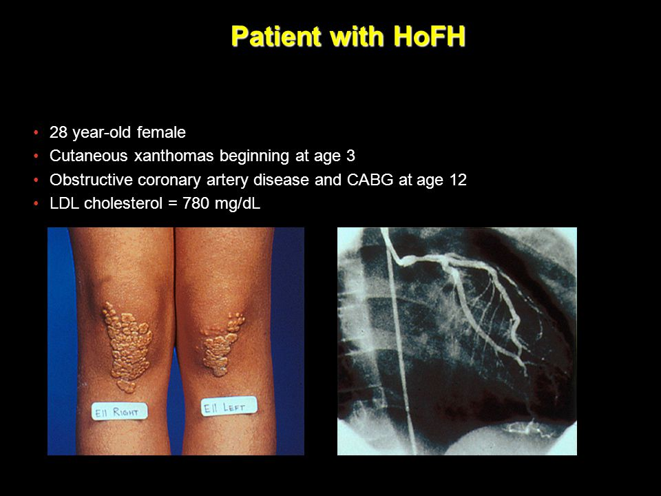 Patient with HoFH EMDAC Slide FINAL CM-006. 28 year-old female