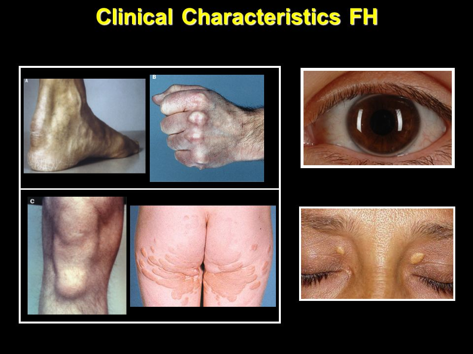 Clinical Characteristics FH