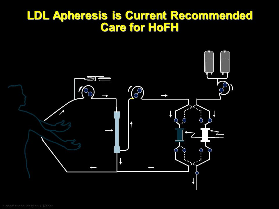 LDL Apheresis is Current Recommended Care for HoFH