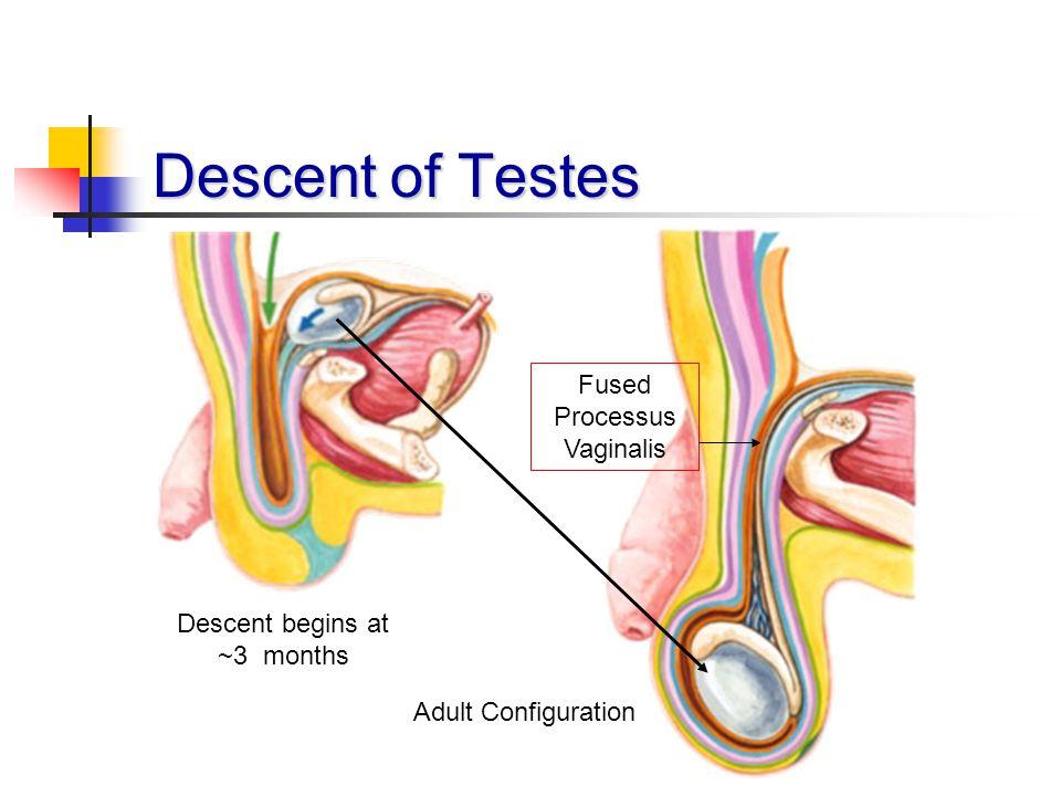 Descent of Testes Fused Processus Vaginalis