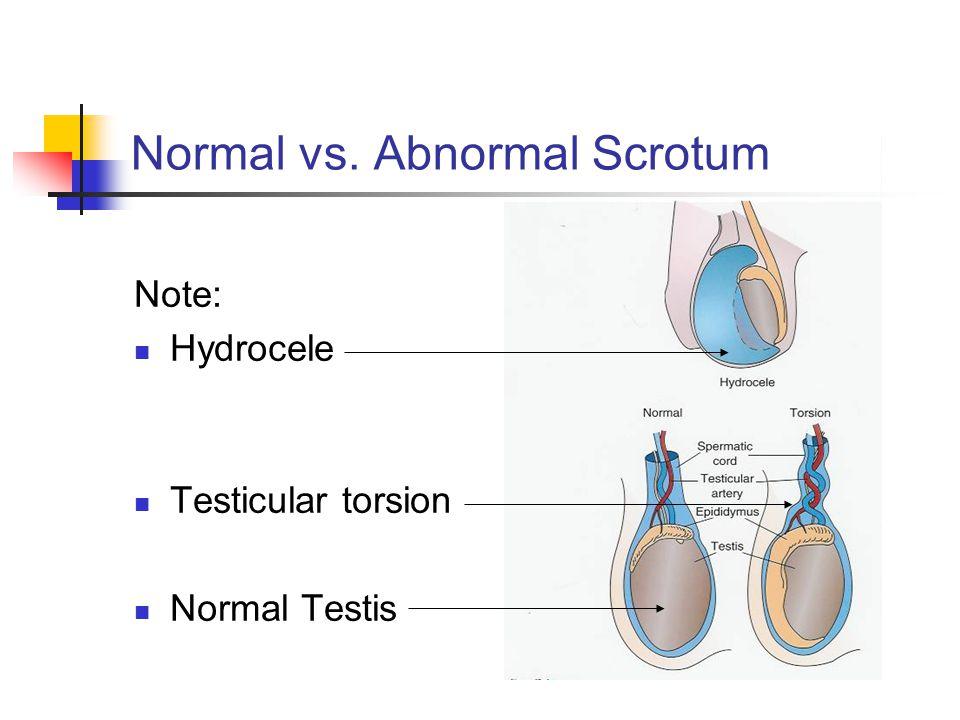 Normal vs. Abnormal Scrotum
