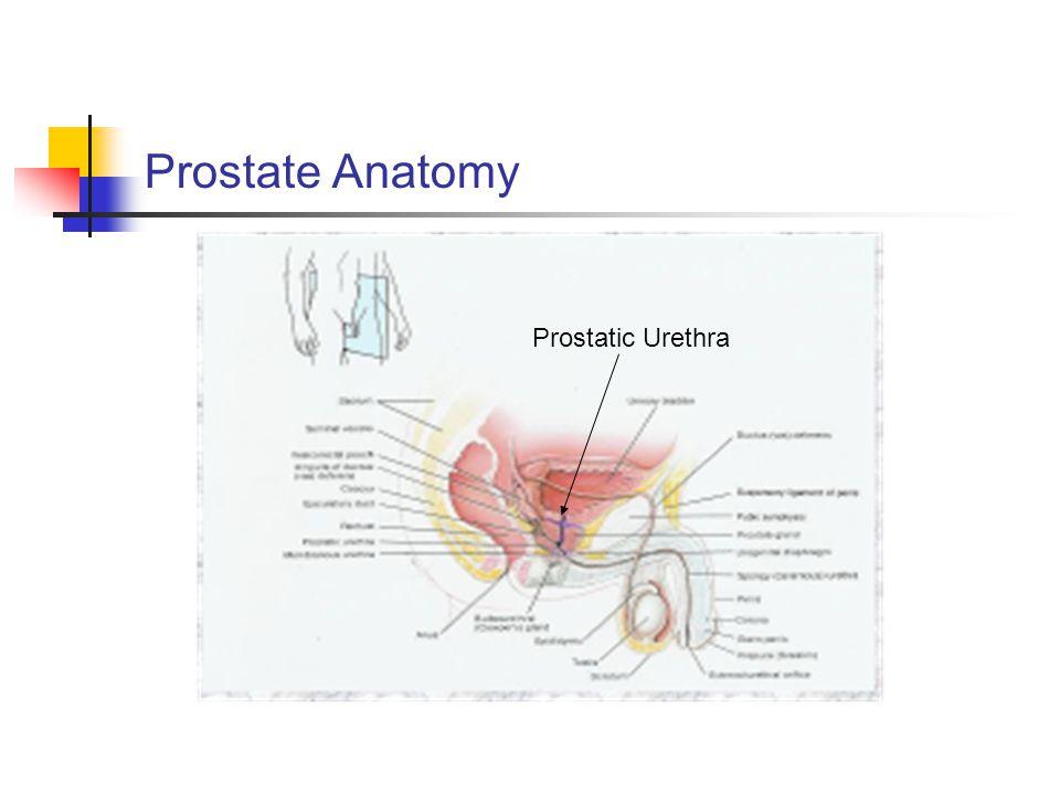 Prostate Anatomy Prostatic Urethra