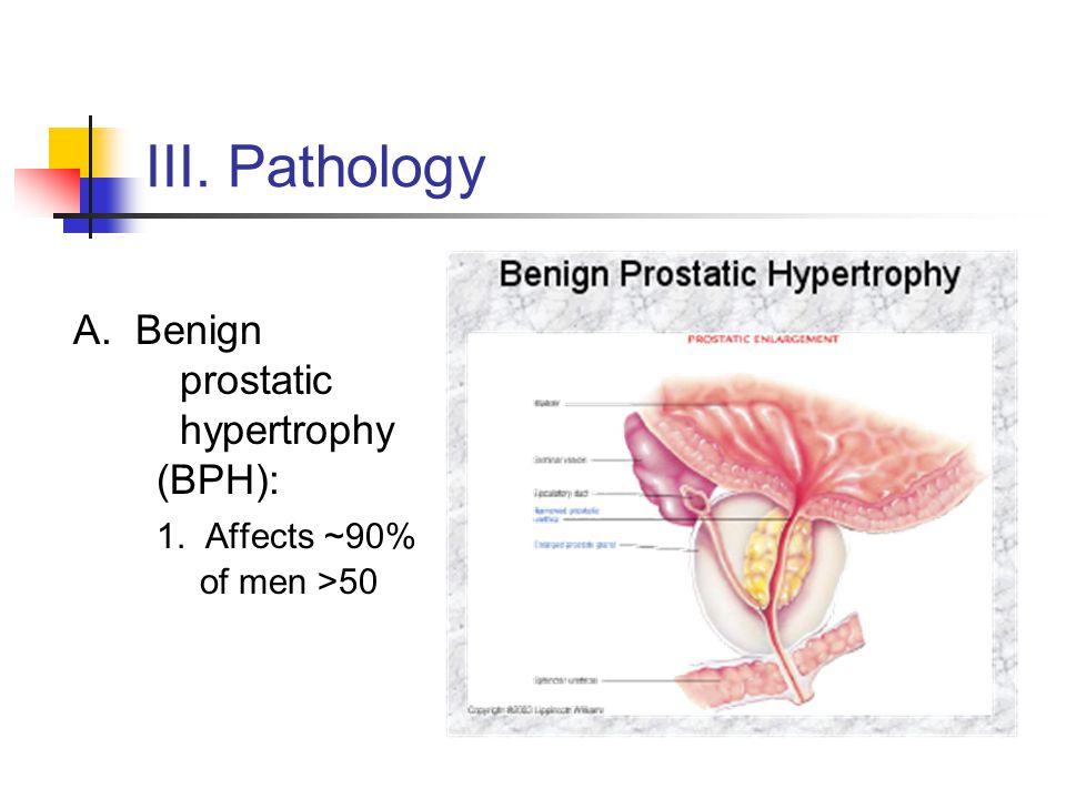 III. Pathology 1. Affects ~90% of men >50