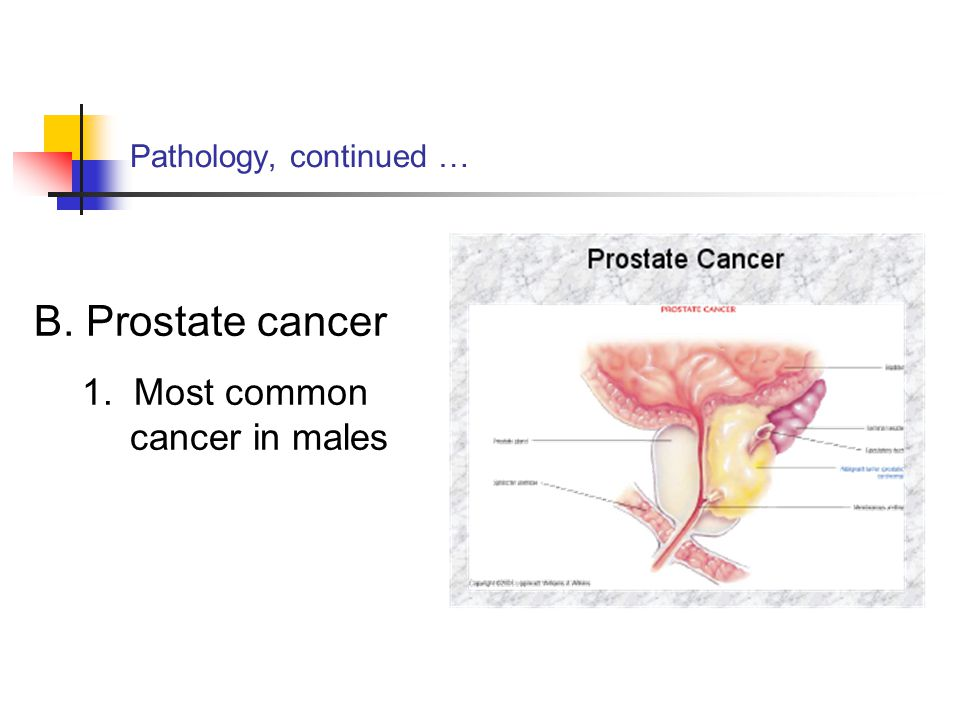 B. Prostate cancer 1. Most common cancer in males