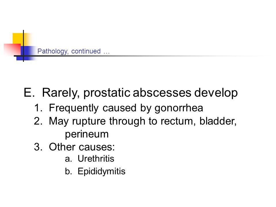 E. Rarely, prostatic abscesses develop