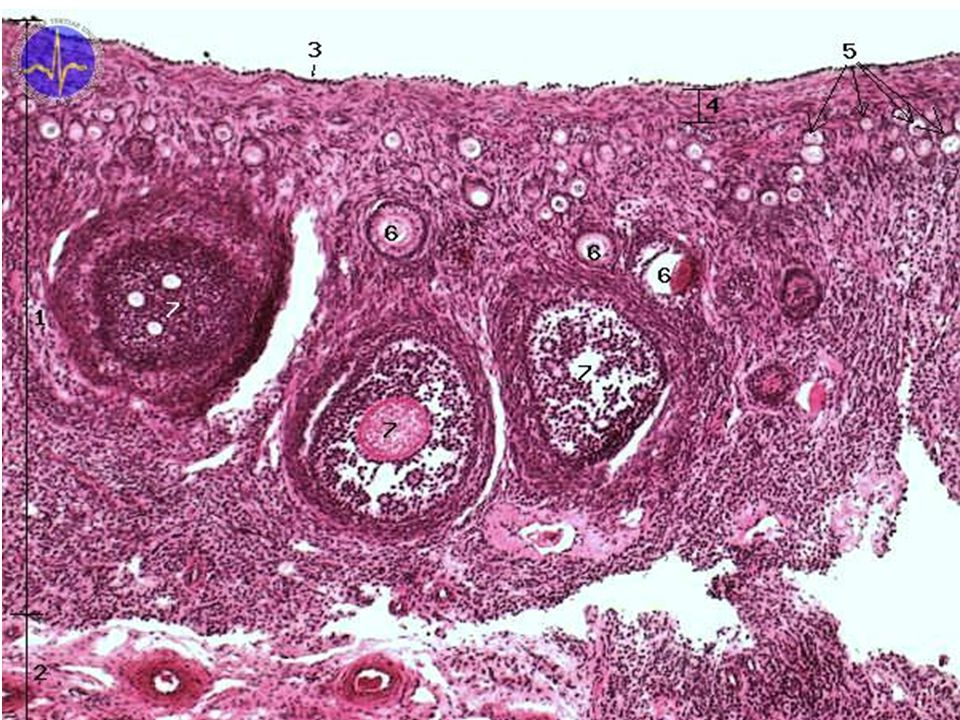 1 ovarian cortex, 2 ovarian medulla, 3 - superficial epithelium- simple cuboidal, 4 - Tunica albuginea, 5 - Primordial follicles, 6 - Primary follicles, 7 - Tertial follicles in rabbit ovary are visible numerous follicles in various stages of development. On this slide are shown three large secondary follicles with formning cavities, several primary follicles and numerous primordial follicles.