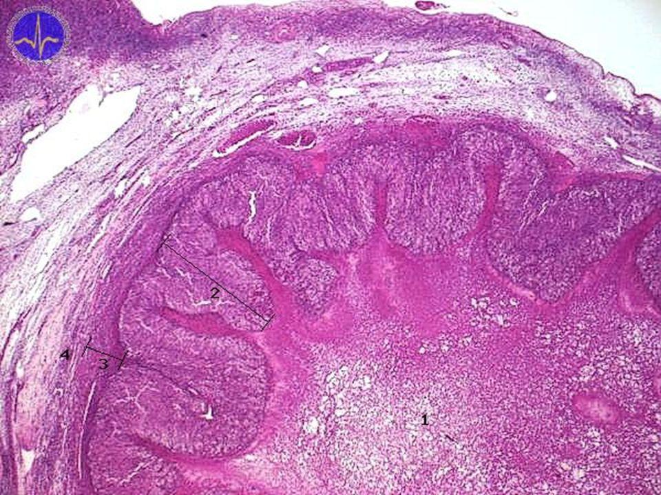 1 - Krevní koagulum, 2 - Granulóza-luteinní buňky, 3 - Téka-luteinní buňky, 4 - Pouzdro žlutého tělíska Žluté tělísko je vyplněno hematomem (vpravo dole) Další vrstvu tvoří granulóza-luteinní buňky produkující estrogeny a gestageny. Okolo těch jsou téka-luteinní buňky z bývalé theca interna, které tvoří gestageny a malá množství androgenů.