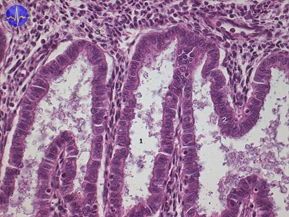 1 - Průsvit žlázky obsahující sekret, 2 - Epitelová výstélka žlázy, 3 - Lamina propria se stromálními buňkami Žláza v sekreční fázi je stočená. Okolní stromální buňky se v případě oplození a nidace mění v buňky deciduální. Stroma taktéž obsahuje stočené arterioly.