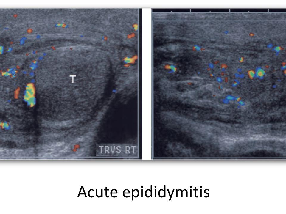 Acute epididymitis