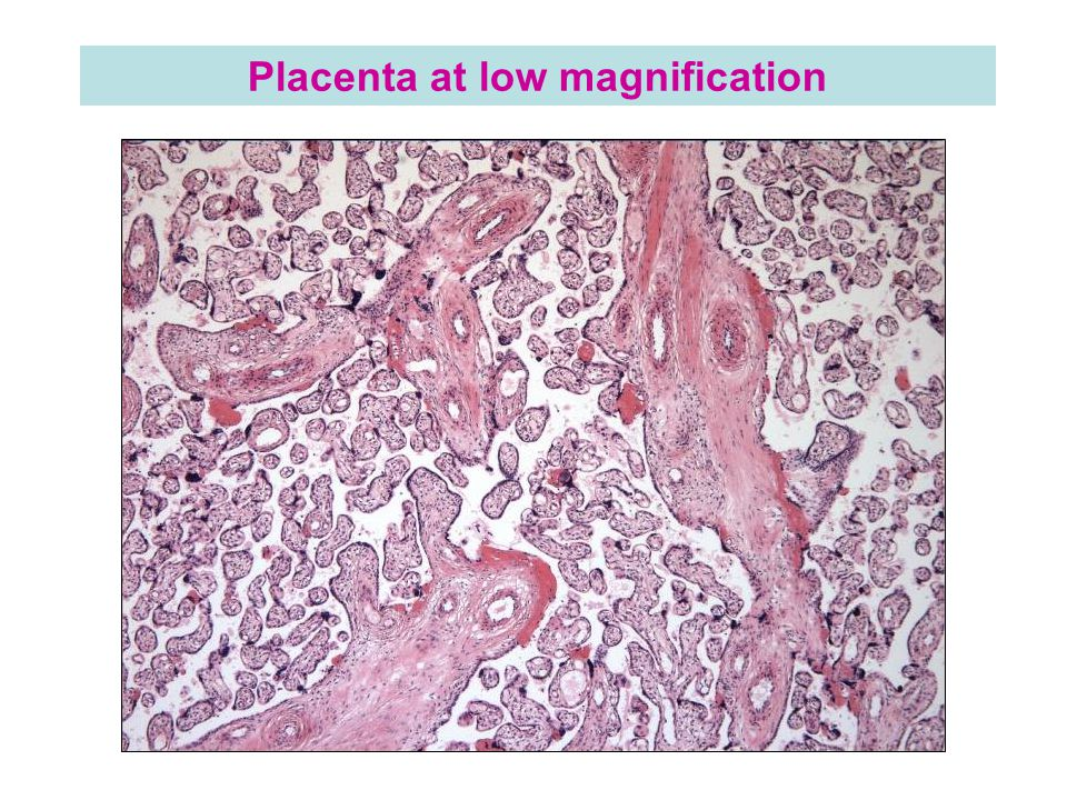 Placenta at low magnification