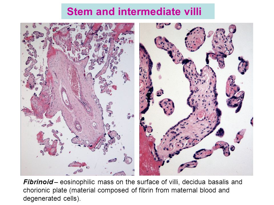 Stem and intermediate villi