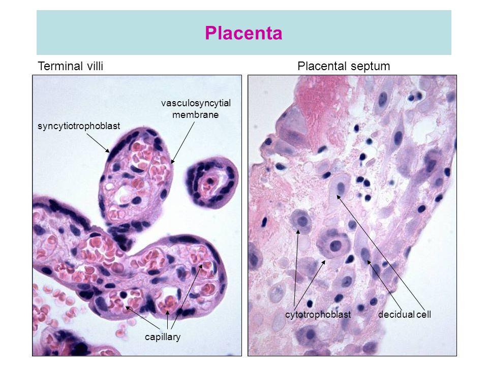 vasculosyncytial membrane