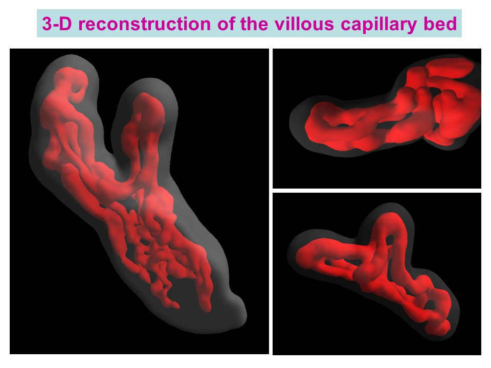 3-D reconstruction of the villous capillary bed