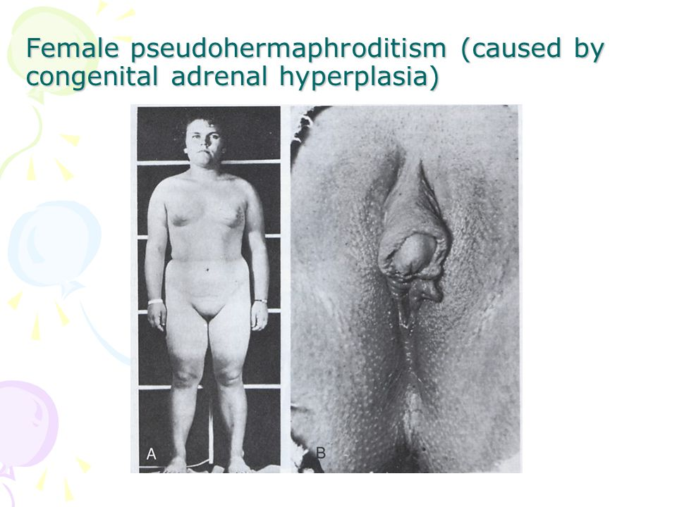 Female pseudohermaphroditism (caused by congenital adrenal hyperplasia)