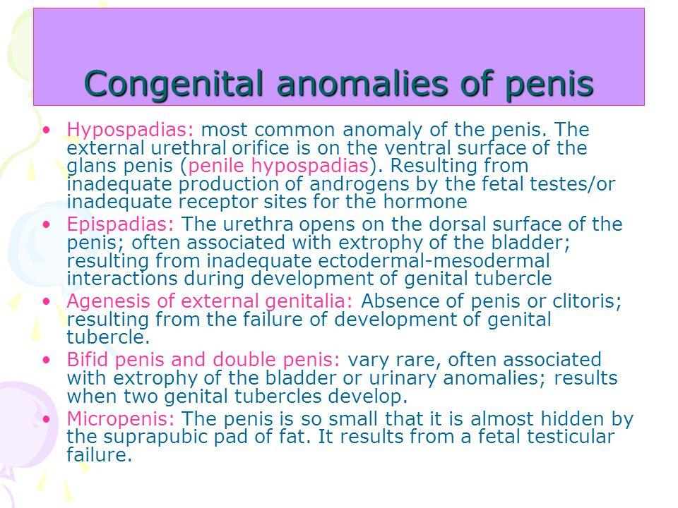Congenital anomalies of penis