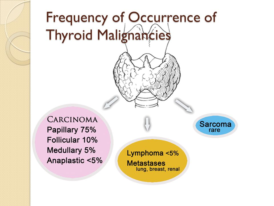Frequency of Occurrence of Thyroid Malignancies
