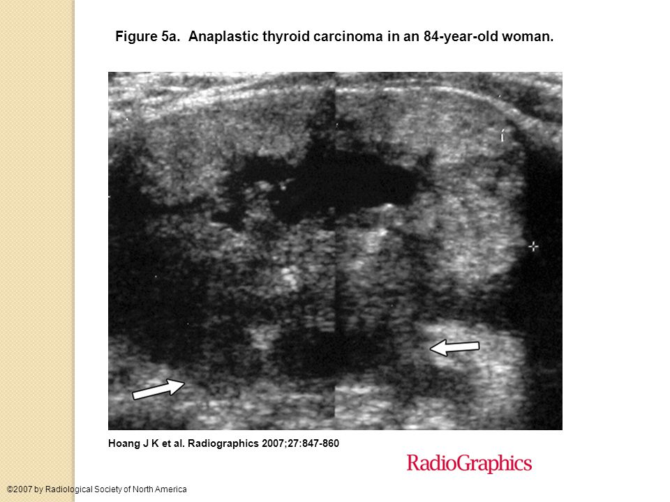 Figure 5a. Anaplastic thyroid carcinoma in an 84-year-old woman.