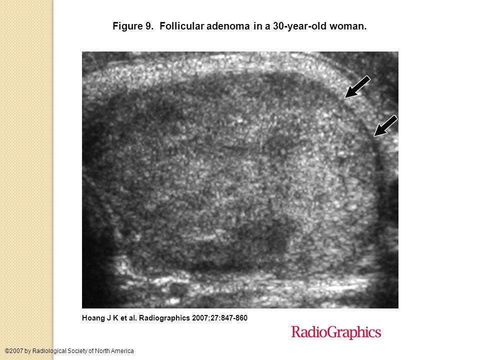 Figure 9. Follicular adenoma in a 30-year-old woman.