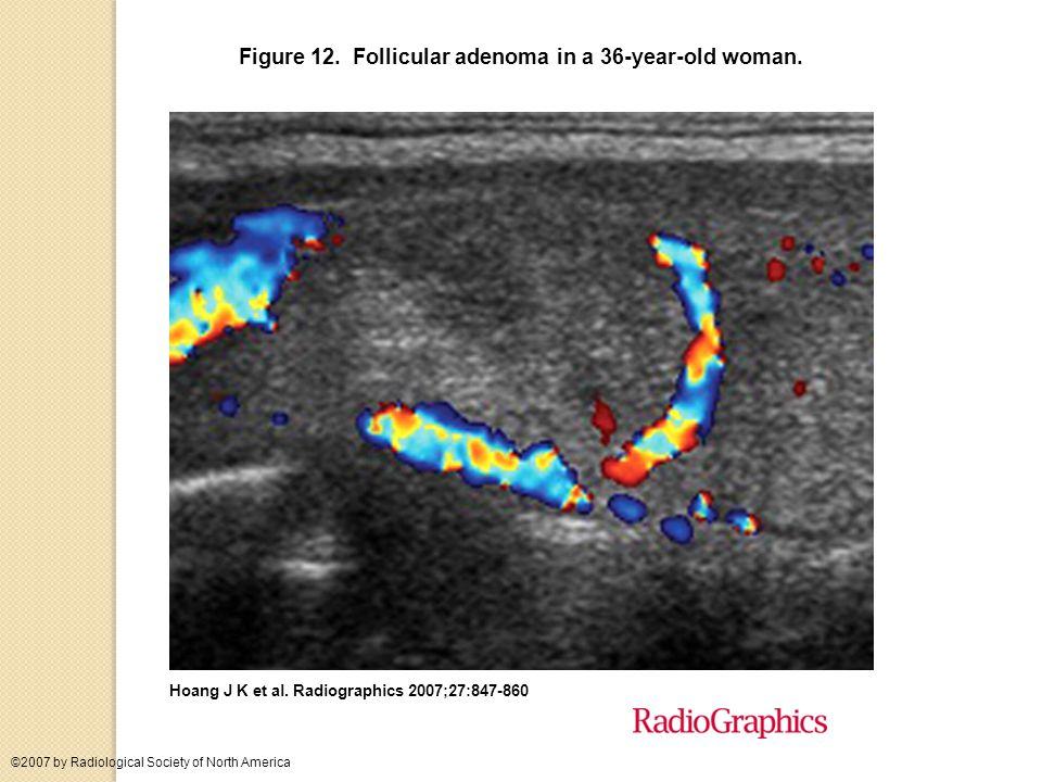 Figure 12. Follicular adenoma in a 36-year-old woman.