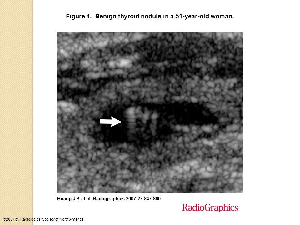 Figure 4. Benign thyroid nodule in a 51-year-old woman.