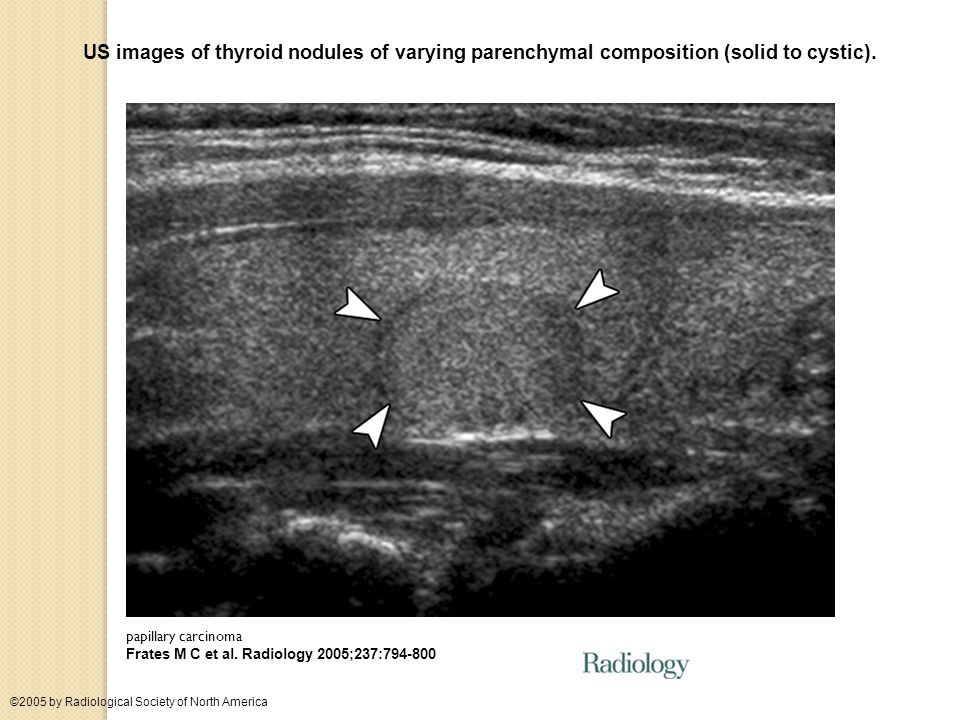 US images of thyroid nodules of varying parenchymal composition (solid to cystic).