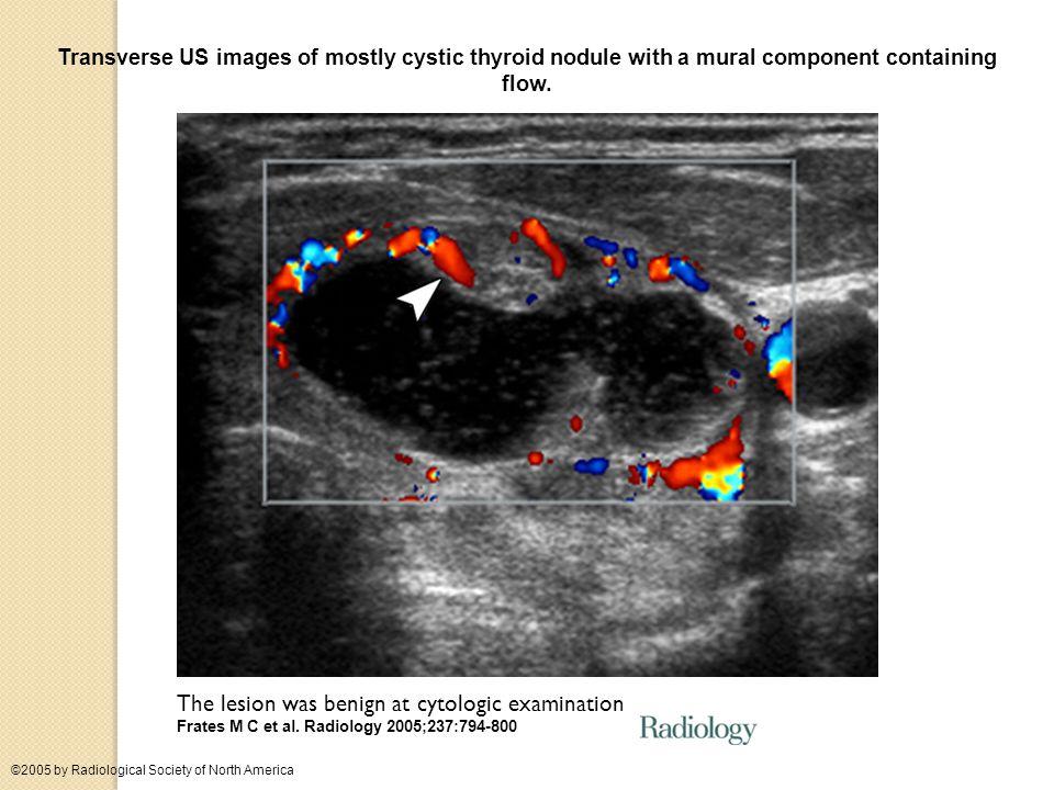 The lesion was benign at cytologic examination