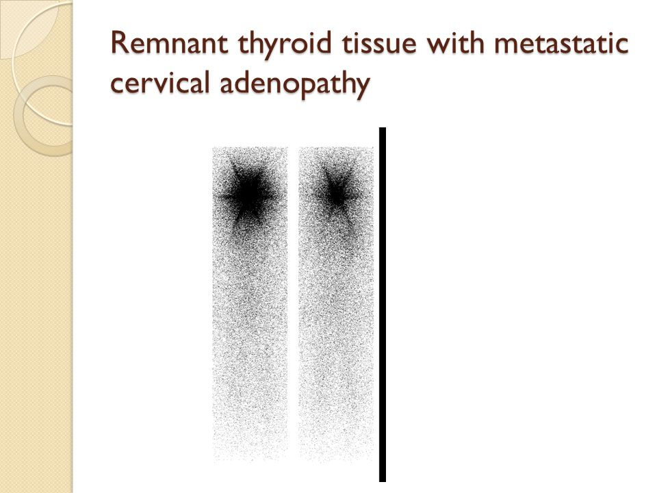 Remnant thyroid tissue with metastatic cervical adenopathy