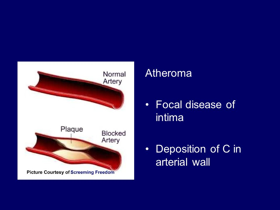 Atheroma Focal disease of intima Deposition of C in arterial wall