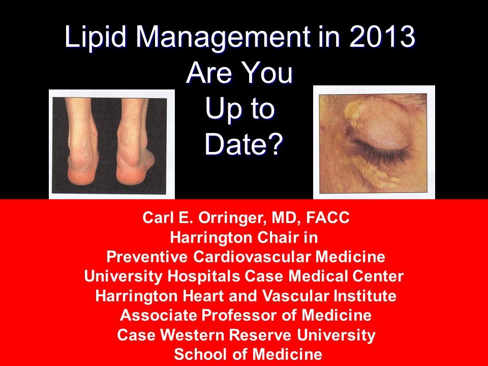 Lipid Management in 2013 Are You Up to Date