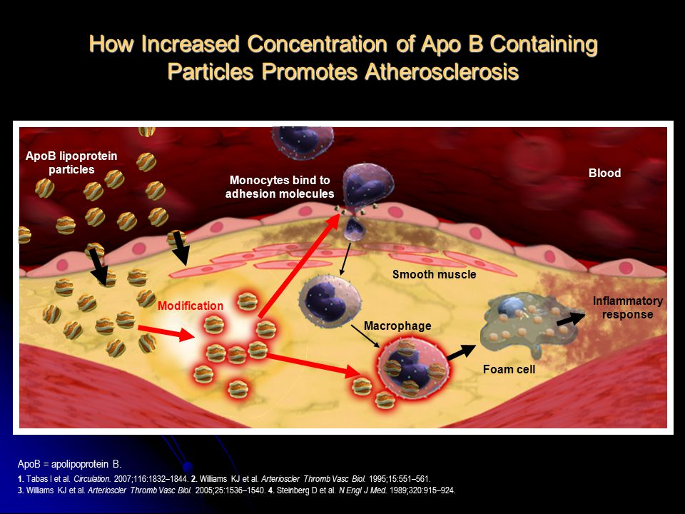 How Increased Concentration of Apo B Containing Particles Promotes Atherosclerosis