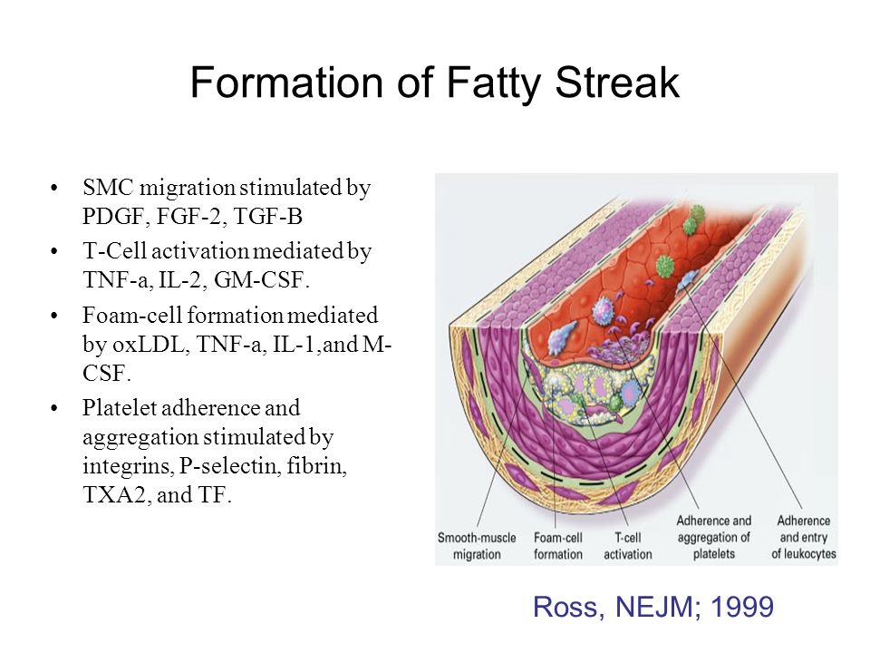 Formation of Fatty Streak