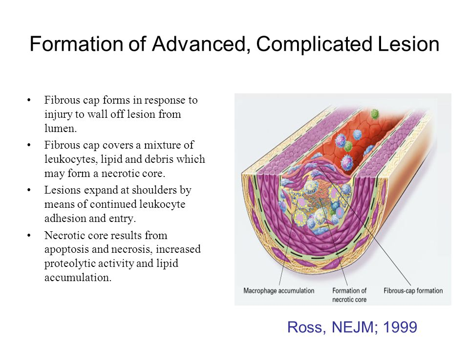Formation of Advanced, Complicated Lesion