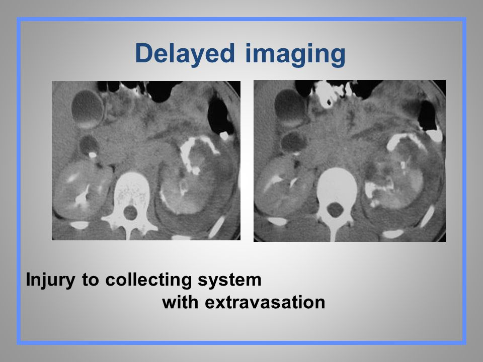 Delayed imaging Injury to collecting system with extravasation