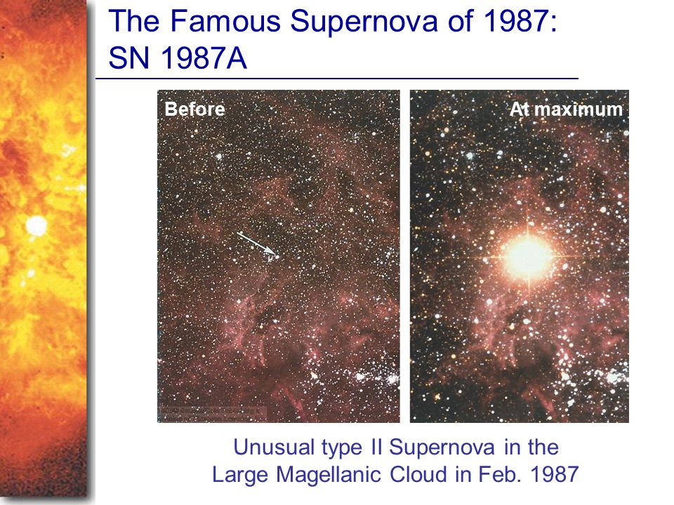 The Famous Supernova of 1987: SN 1987A