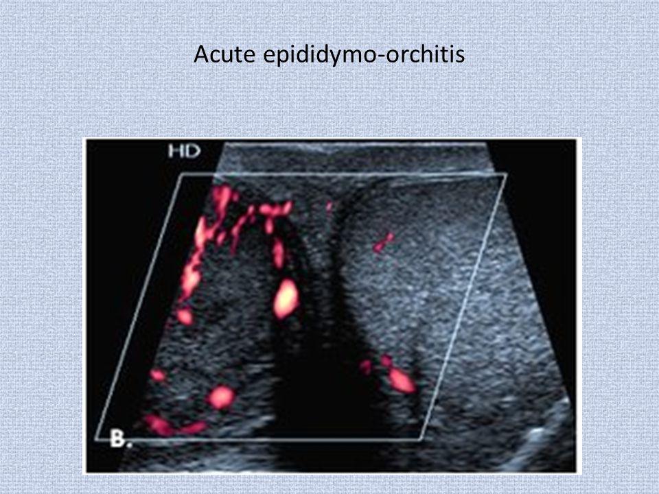 Acute epididymo-orchitis
