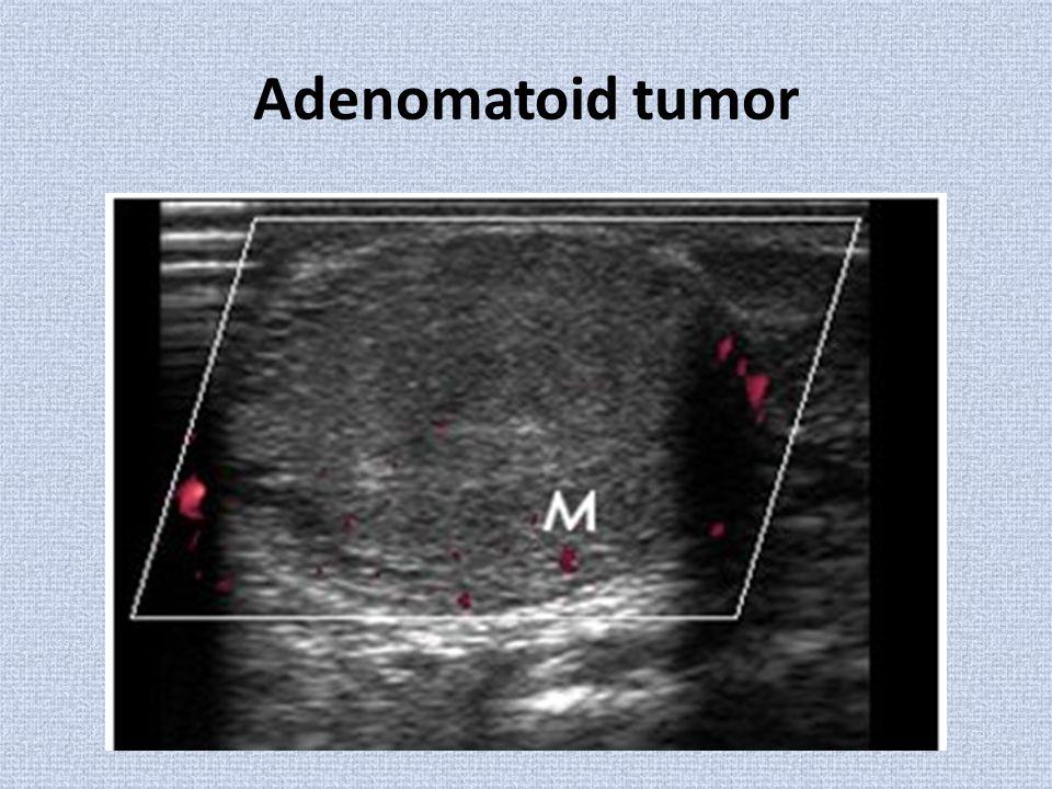 Adenomatoid tumor