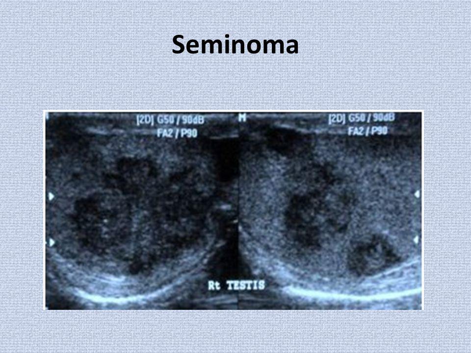 Seminoma