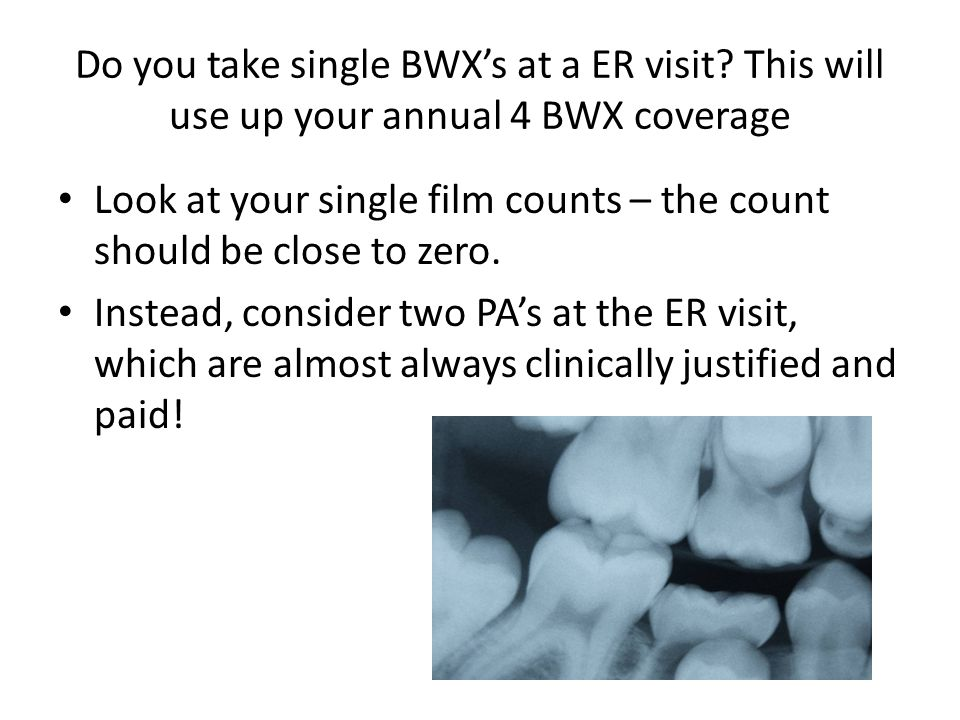 Do you take single BWX's at a ER visit