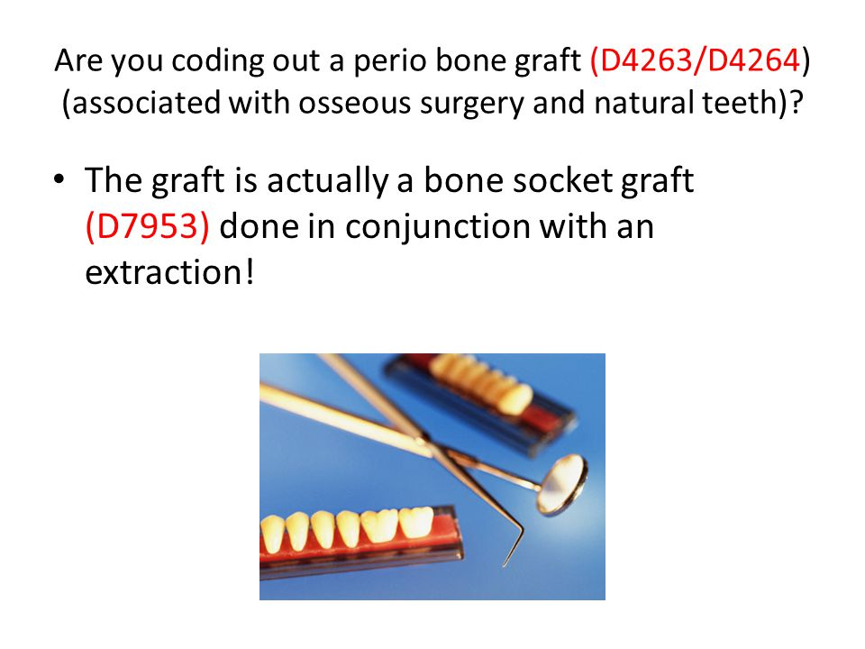 Are you coding out a perio bone graft (D4263/D4264) (associated with osseous surgery and natural teeth)