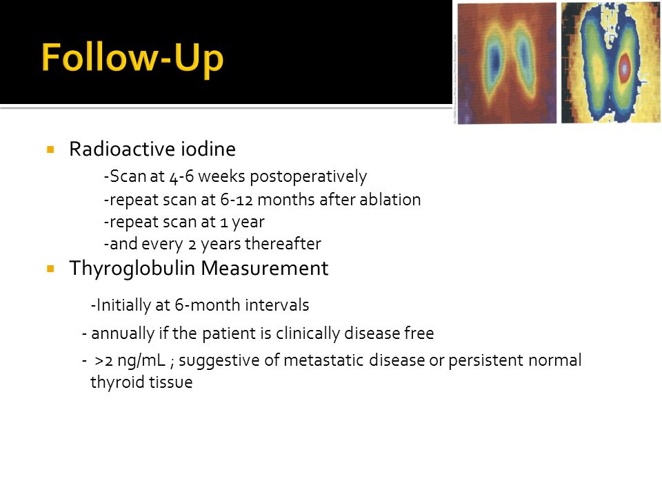 Follow-Up -Initially at 6-month intervals Radioactive iodine