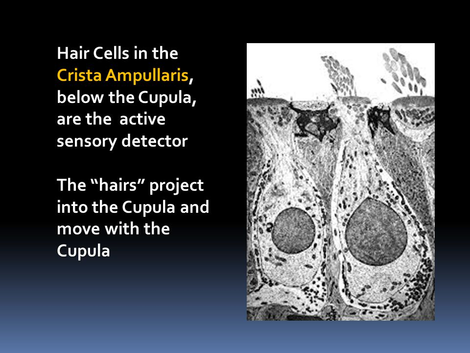 Hair Cells in the Crista Ampullaris, below the Cupula, are the active sensory detector