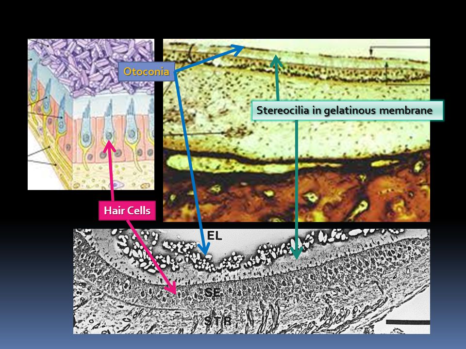 Otoconia Stereocilia in gelatinous membrane Hair Cells